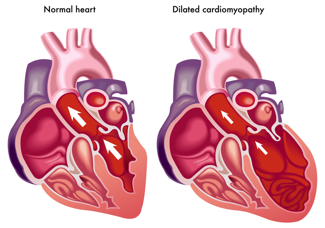 Normal vs. DCM heart in dogs